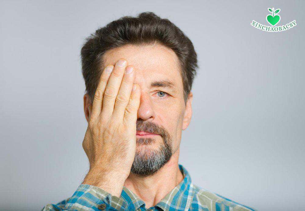 Vạch trần 17 nguyên nhân khiến mắt tự nhiên bị mờ một bên